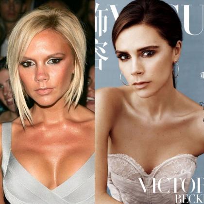 Menyesal Pernah Perbesar Payudaranya Victoria Istri Beckham